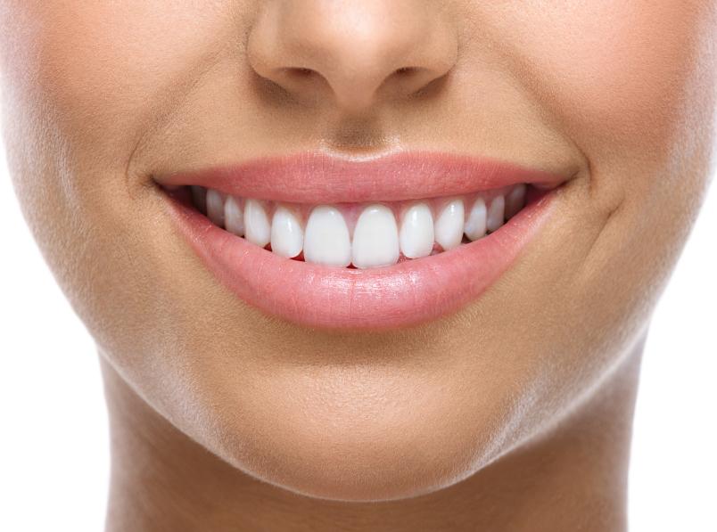retenedores ortodoncia
