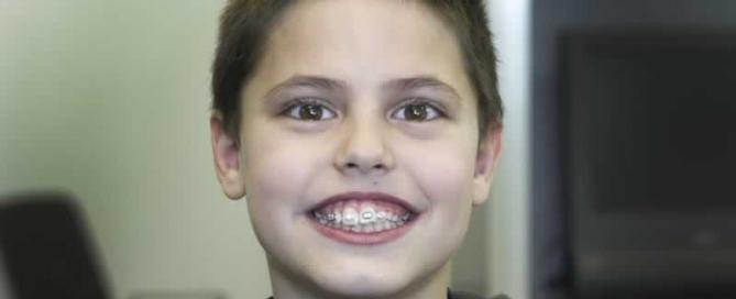 ortodoncista infantil a coruña