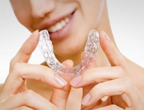 Cómo quitar los brackets de ortodoncia