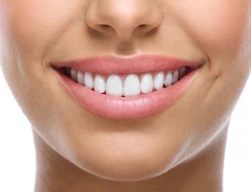La importancia de los retenedores en ortodoncia.